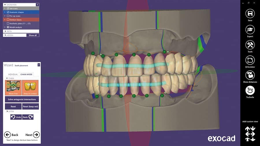 Full Denture Module Correct Placement