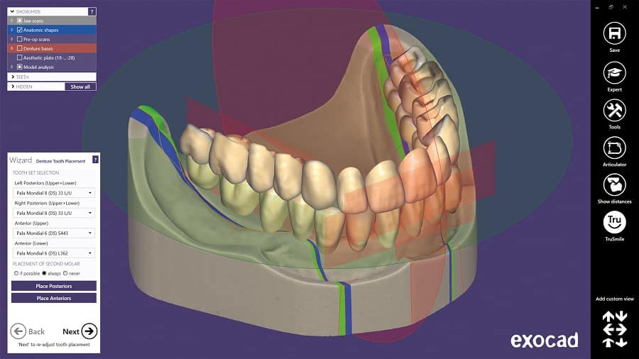 Full Denture Module Tooth Placement