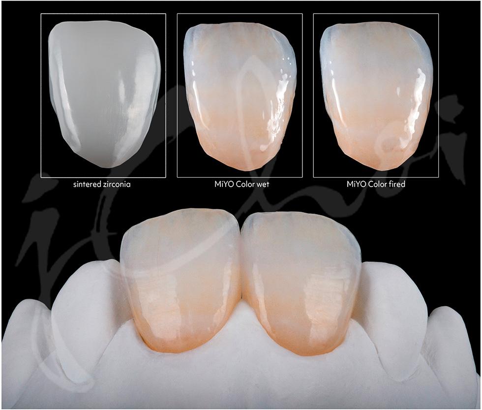 Miyo Kit Simple 3D Dental Store