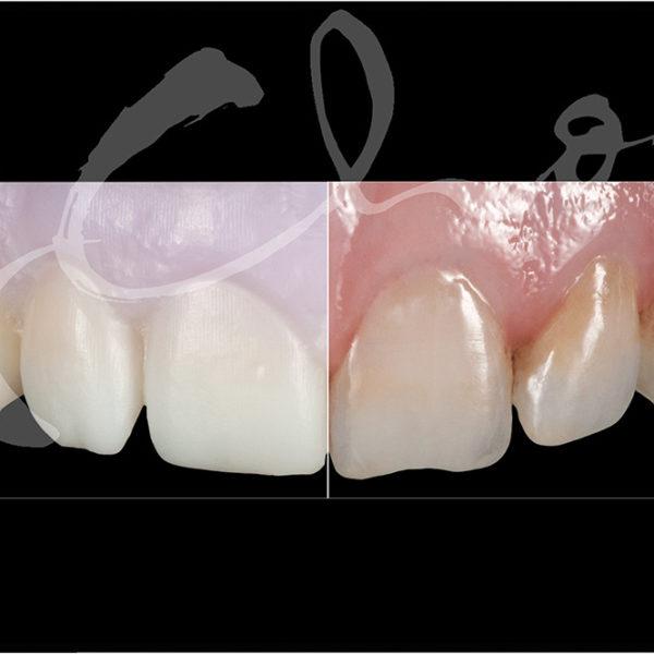 Miyo Pink Kit Maquillage Dentaire