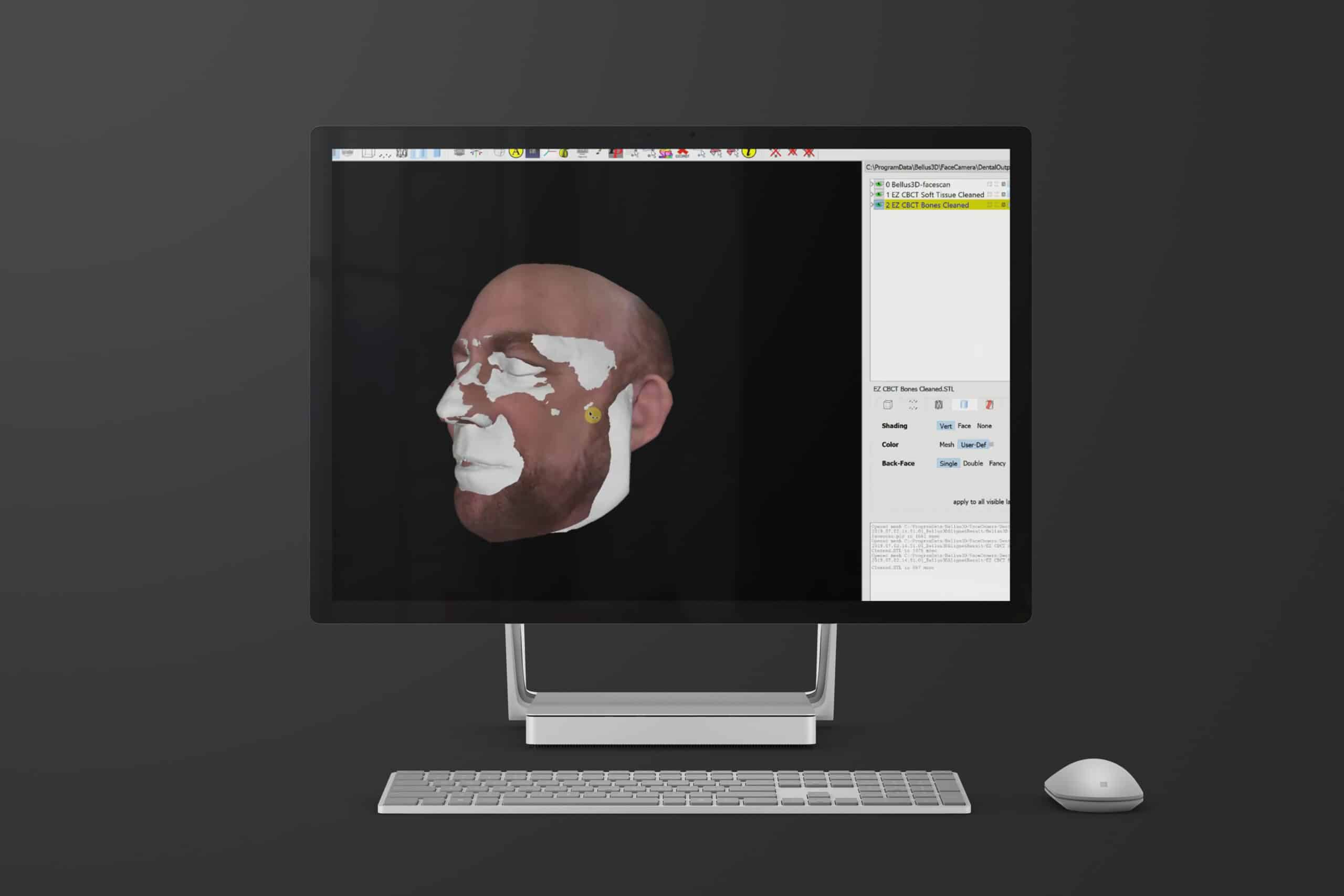 Bellus3D Dental Pro pour Windows