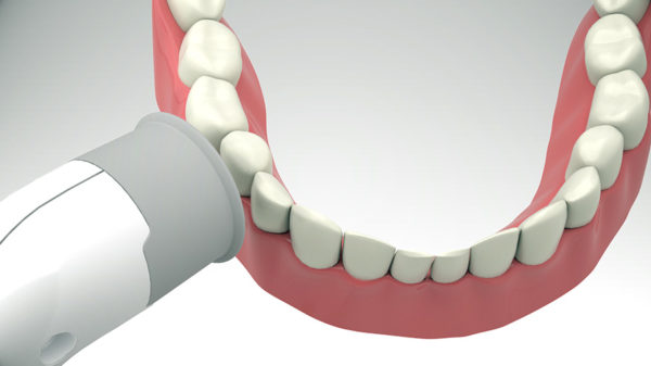 Appareuil Rayplicker Handy Borea – prise de teinte dentaire